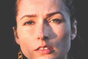 12 maneiras de se livrar do período acne