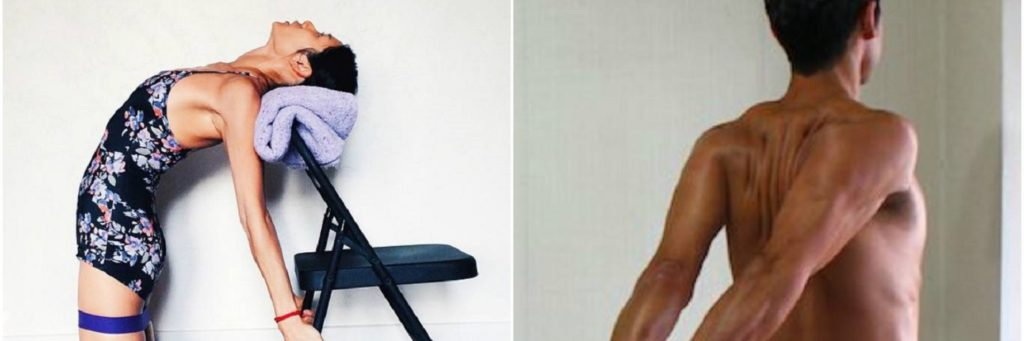 6 exercícios para corrigir ombro irregular