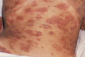 O que significa infecção em sangue