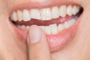 Por que meus dentes continuam lascando