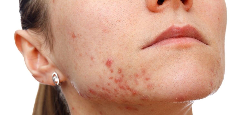 acne ou acne vulgar