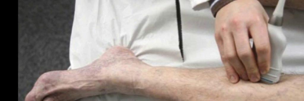 causas de dvt e pe e seu diagnóstico de sintomas