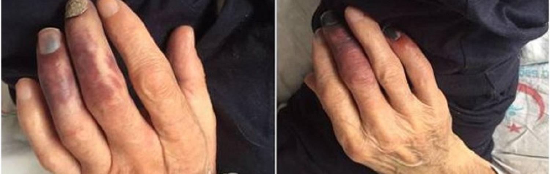 embolia do colesterol ou síndrome do dedo roxo