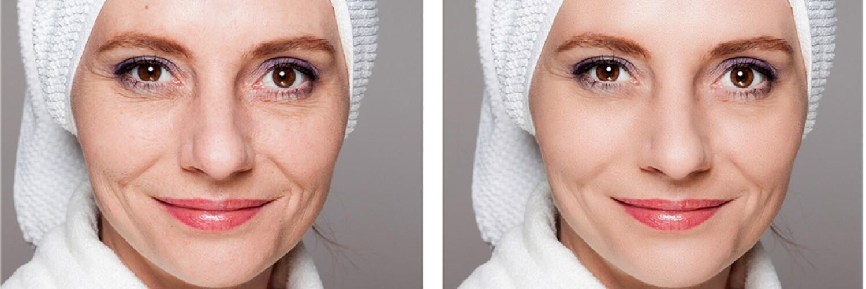 diferentes tipos de facelifts não cirúrgicos
