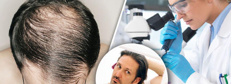 transplante de cabelo ou tratamento para alopecia