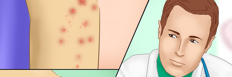 como você começa sarna sabe sua prevenção de remédios caseiros
