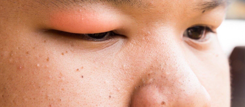 o que são olhos esbugalhados um sintoma de