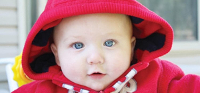 olhos vermelhos inchados em um bebê