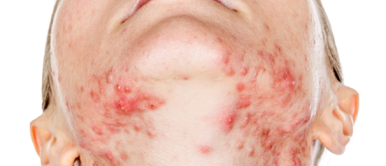 sintomas e fases do hiv
