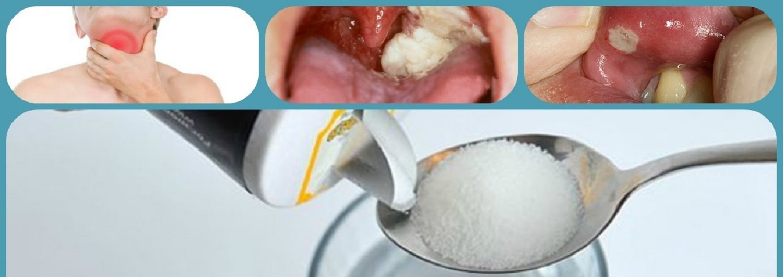 água morna salgada gargarejo melhor remédio caseiro para dor de garganta
