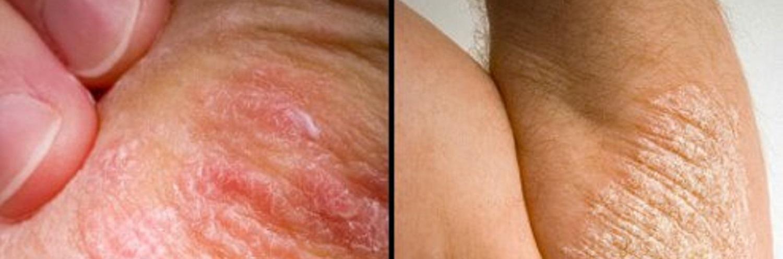 o que é doença de depósito de gadolínio