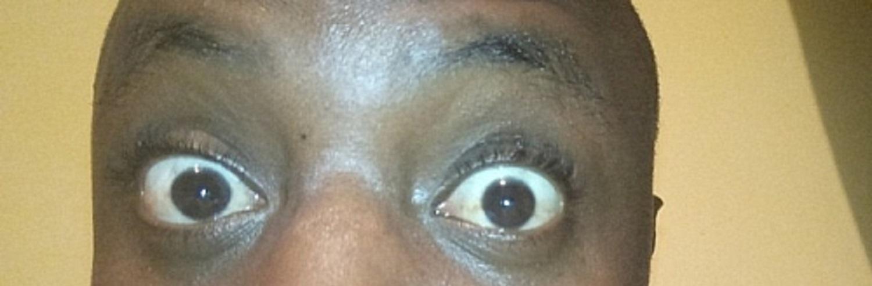 qual é a causa dos olhos esbugalhados