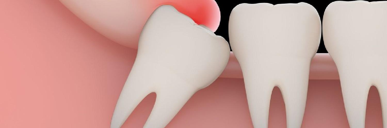 dente do siso e sua erupção