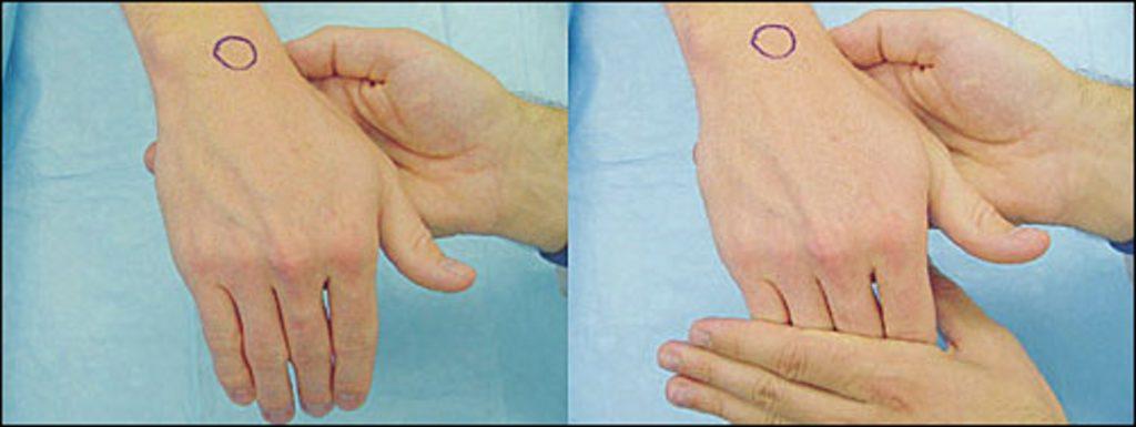 anatomia da articulação do punho