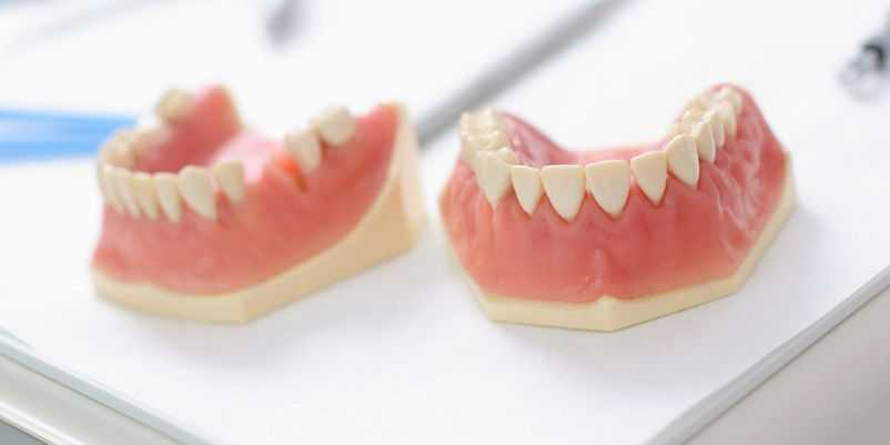 10 maus hábitos que causam placa nos dentes