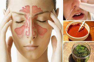 8 maneiras eficazes para tratar o nariz bloqueado
