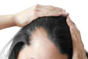 A caspa é contagiosa e pode causar queda de cabelo?