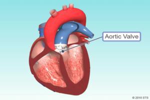 A doença da válvula do coração pode ser curada?