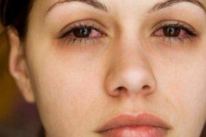 A doença dos olhos é abaulada