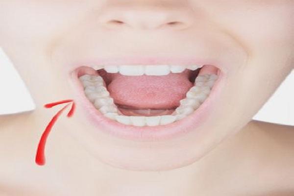 A fibromialgia pode afetar seus dentes?