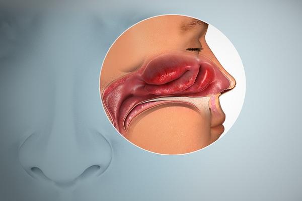 Anosmia: O que causa perda de olfato e qual é o tratamento?