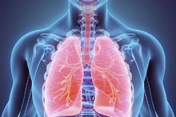 Atelectasia Pulmonar Tratamento