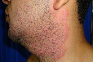 Barber's Itch ou Pseudofolliculitis Barbae