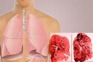 Bissinose ou Doença Pulmonar de Brown ou Febre de Segunda Feira