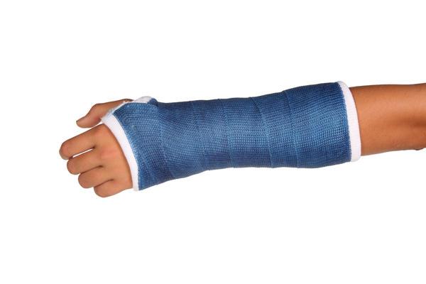 Braço Quebrado ou Braço Fraturado