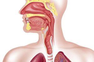Câncer traqueal