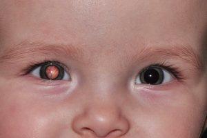 Catarata Congênita ou Adquirida em Crianças