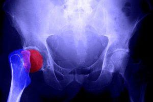 Causas Hormonais da Osteoporose e seu Tratamento