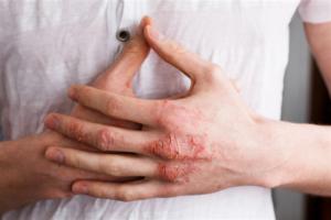 Causas de eczema nas mãos