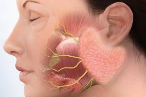 Causas de pedras da glândula salivar e seu tratamento, Home remédios