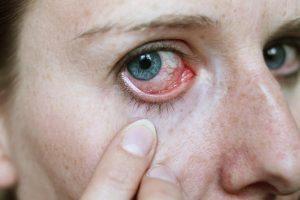 Coágulo de sangue no olho