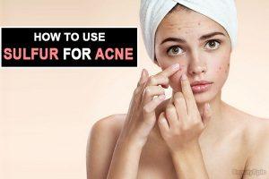 Como enxofre ajuda com acne?