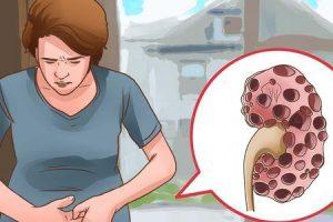 Como podemos prevenir a insuficiência renal