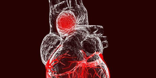 Como você evita o aneurisma da aorta