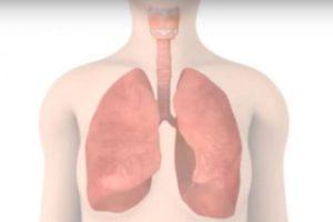 Conheça os sinais da infecção pulmonar