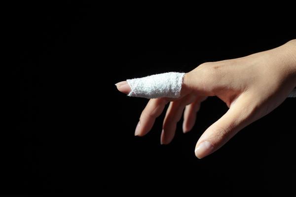 Dedo quebrado ou dedo fraturado