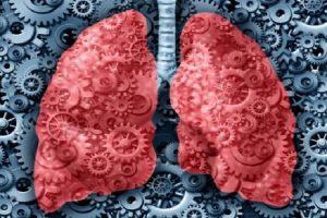 Doença Respiratória Exacerbada pela Aspirina