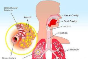 Edema Pulmonar Neurogênico