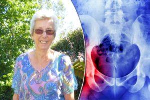 Efeitos da osteoporose e pode ser revertida?