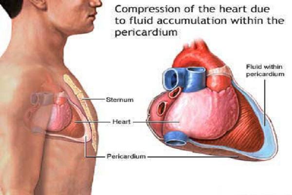 Eles tiram o seu coração durante a cirurgia cardíaca aberta?