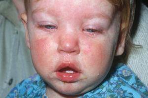 Epidemic Mumps or Parotiditis