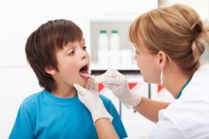 Epiglotite