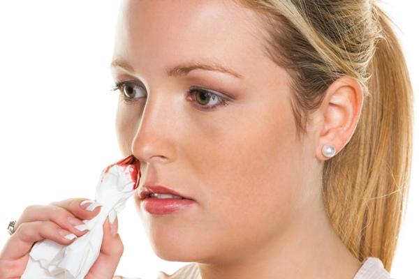 Epistaxe ou hemorragia nasal