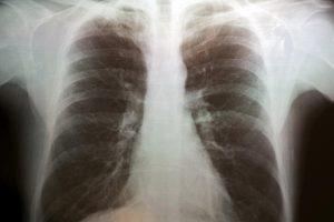 Granuloma Pulmonar