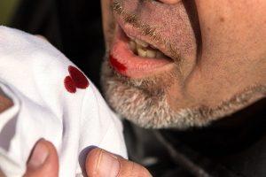Hemoptise ou expectoração com sangue