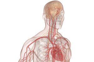 Hemorragia Cerebral Subaracnoide